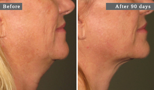 COU - L'ULTHÉRAPIE – UN LIFTING SANS CHIRURGIE – NECK - ULTHERA TREATMENT - A NON-SURGICAL WAY TO LIFT SKIN