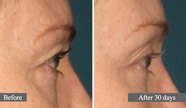 L'ULTHÉRAPIE – UN LIFTING SANS CHIRURGIE - ULTHERA TREATMENT - A NON-SURGICAL WAY TO LIFT SKIN