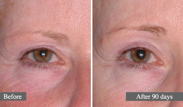 SOURCIS - L'ULTHÉRAPIE – UN LIFTING SANS CHIRURGIE - EYEBROWS - ULTHERA TREATMENT - A NON-SURGICAL WAY TO LIFT SKIN