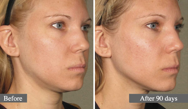 COU - L'ULTHÉRAPIE – UN LIFTING SANS CHIRURGIE - NECK - ULTHERA TREATMENT - A NON-SURGICAL WAY TO LIFT SKIN