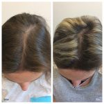 Platelet rich plasma (PRP) treatment has become an extremely useful modality for the treatment of hair loss.